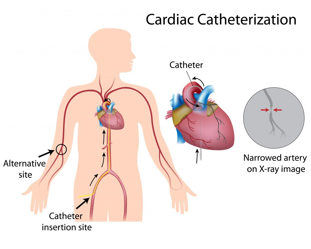 Cardiac Catheterization First Coast Heart Vascular Center